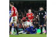 Chelsea's Kurt Zouma was injured in Sunday's draw with Manchester United